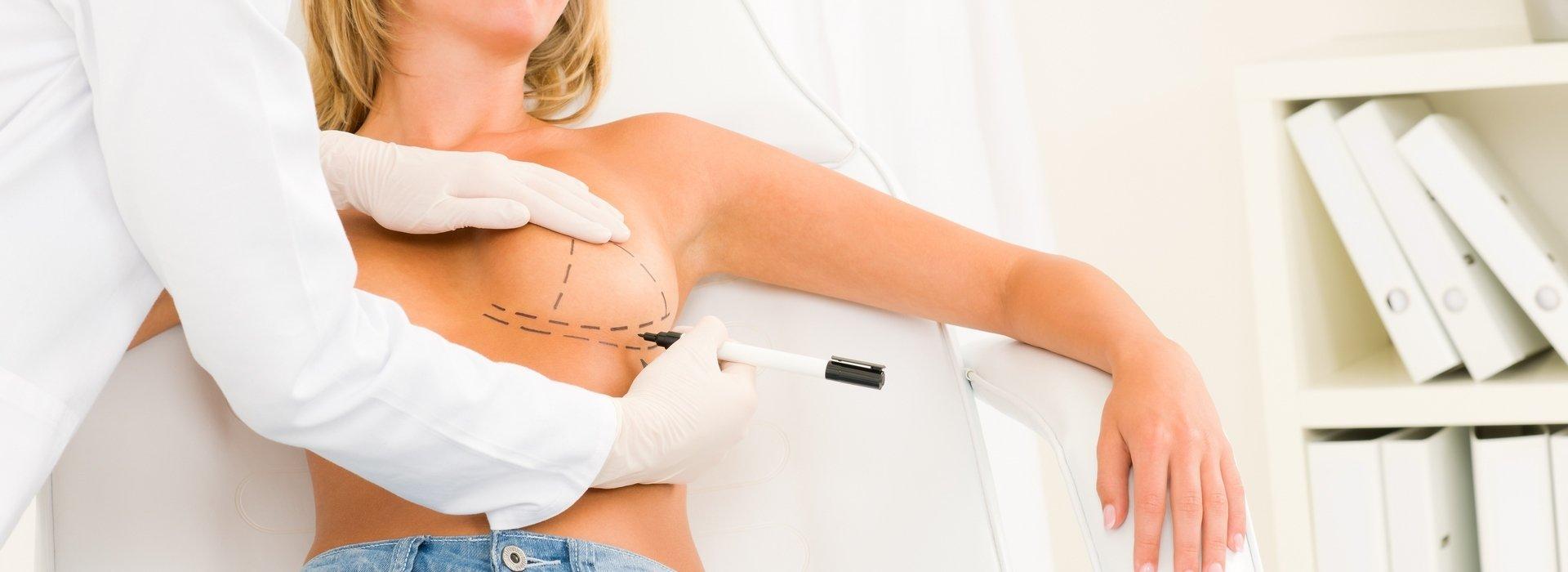 Brustplastik in Budapest – Günstige Brustplastik Budapest