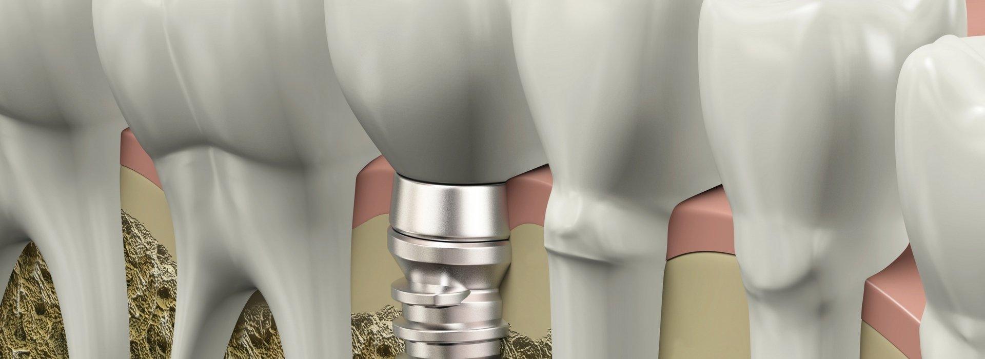 Implantológia