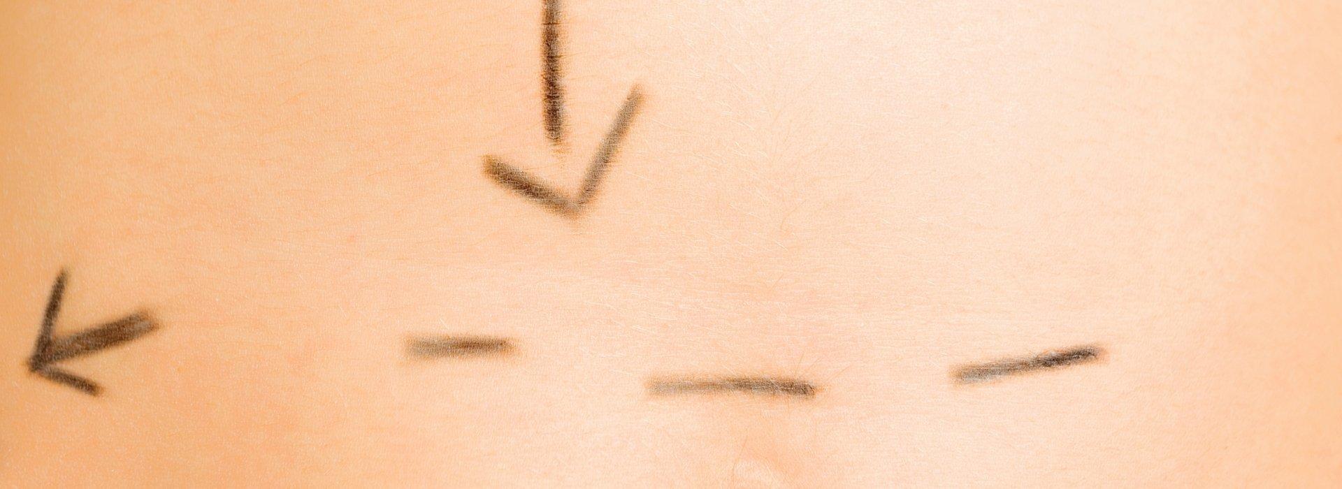 Hautkorrektur